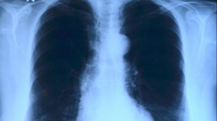 x-ray-image-568241_1920
