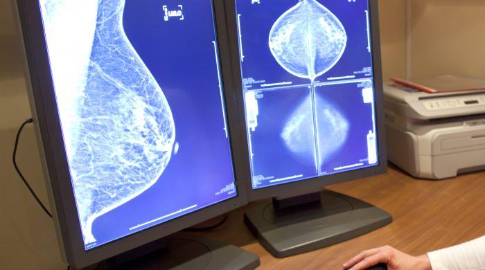 Bristen på bröstradiologer i Sverige riskerar att leda till att varannan tjänst om fem år inte kan tillsättas. Foto: IStockphoto